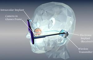 Implant rétinien
